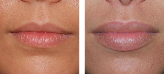 Injection d'acide hyaluronique dans les lèvres.