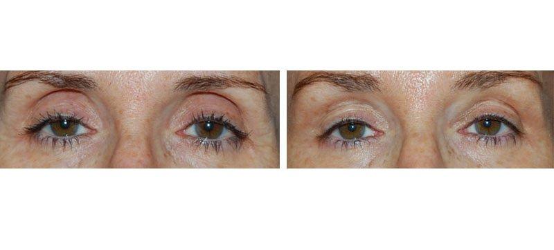 Traitement de l'oeil creux par injection d'acide hyaluronique