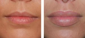 Photo avant /après de lèvres repulpées par injections d'acide hyaluronique