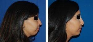 Photo avant /après profiloplastie sans chirurgie par injection d'acide hyaluronique